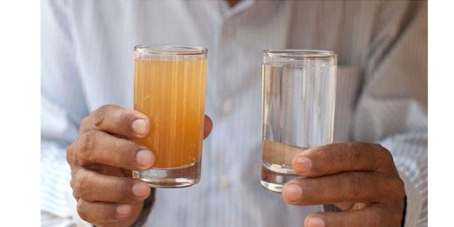 بیماری های ناشی از آب آلوده